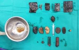 Cứu sống bệnh nhân nuốt đá sỏi, bật lửa, túi nylon đến cả... dao lam