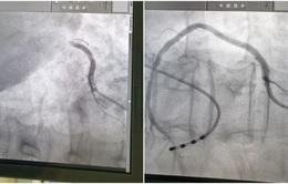 Cứu bệnh nhân nhồi máu cơ tim cấp biến chứng sốc tim, ngừng tuần hoàn