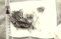 Lấy xương gà mắc kẹt ở thực quản cụ ông 102 tuổi