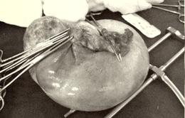 Cắt u nang buồng trứng tương đương thai 5 tháng tuổi