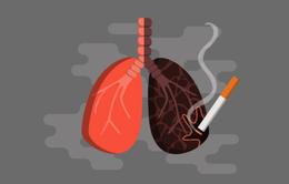 Giải pháp thanh lọc lá phổi bị nhiễm độc do khói thuốc lá