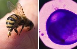 Nọc ong mật có thể tiêu diệt tế bào ung thư vú ác tính
