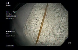 Đi khám vì đau bụng, cụ ông phát hiện tăm dài 5cm đâm vào tá tràng