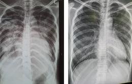 Cứu sống sản phụ bị phù phổi cấp do tiền sản giật nặng