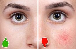 """Từ bỏ cà phê có thể khiến làn da của bạn """"xuống cấp"""" không ngờ"""