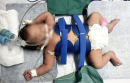 Cứu sống trẻ sơ sinh nguy kịch nhờ kỹ thuật hạ thân nhiệt