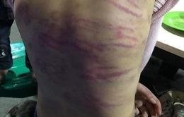 Bé gái 12 tuổi ở Hà Nội bị mẹ đẻ và người tình đánh đập dã man