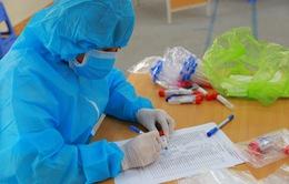 Đắk Lắk ghi nhận 1 ca dương tính với SARS-CoV-2 chưa rõ nguồn lây