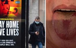 'COVID lưỡi' - triệu chứng mới đáng ngại của đại dịch