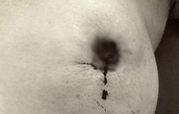 Đau đớn nhập viện do điều trị ung thư vú bằng thuốc nam