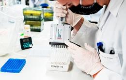 Lại phát hiện biến chủng SARS-CoV-2 mới tại CH Séc