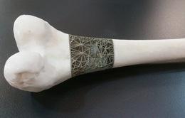 Xương nhân tạo in 3D mang lại hy vọng mới cho bệnh nhân