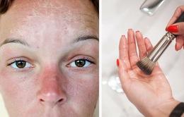 7 điều nguy hiểm cần tránh khi da của bạn bị cháy nắng
