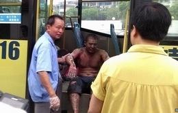 Nổ nhà máy ở miền Đông Trung Quốc, hơn 160 người thương vong
