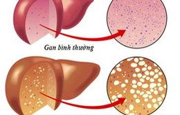Dùng thuốc gì khi gan bị nhiễm mỡ?