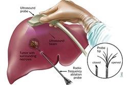 Việt Nam điều trị thành công ung thư gan bằng hạt vi cầu phóng xạ