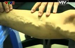 80% bệnh nhân giãn tĩnh mạch chân không biết mình mắc bệnh