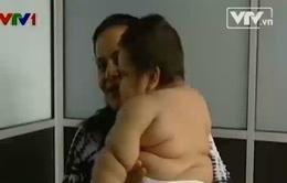 Colombia: Bé trai 8 tháng tuổi nặng... 20kg