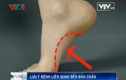 Lưu ý bệnh gai xương bàn chân