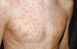 Các bệnh sốt phát ban: Dễ nhầm lẫn!