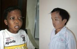 Khoảng 2.000 trẻ mắc bệnh tan máu bẩm sinh mỗi năm