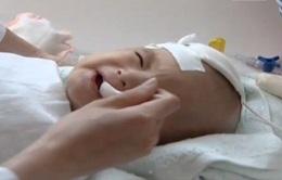 Viêm đường hô hấp cấp tính - bệnh phổ biến ở trẻ nhỏ