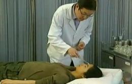 Châm cứu chữa khô mắt hiệu quả
