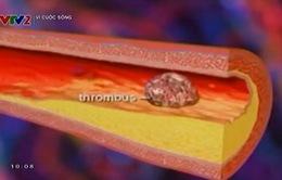 Những biến chứng nguy hiểm của bệnh động mạch vành