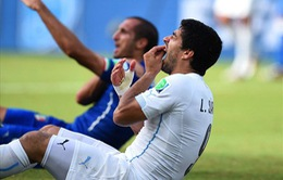 """Suarez sẽ bị treo giò 2 năm vì """"ngứa răng""""?"""