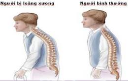 Phát hiện và phòng ngừa bệnh loãng xương ở phụ nữ