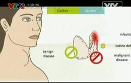 Điều trị ung thư tuyến giáp bằng y học hạt nhân