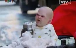 Thảng thốt với em bé có khuôn mặt ác quỷ