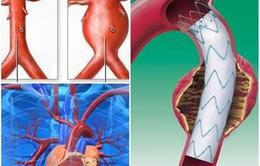 Phương pháp hiệu quả điều trị phình động mạch chủ