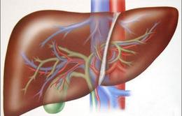 Tổn thương gan: 7 triệu chứng cần lưu ý