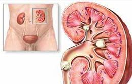 Bài thuốc Đông y điều trị hiệu quả bệnh sỏi thận