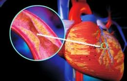 Phương pháp điều trị thành công bệnh động mạch vành