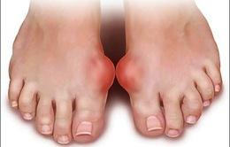 Bệnh Gout: Đâu là nguyên nhân?