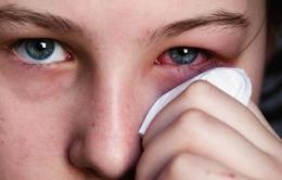 Những lưu ý khi bị đau mắt đỏ
