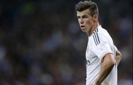 Real Madrid phủ nhận Bale bị chấn thương nặng