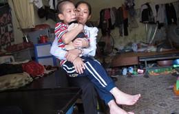 Xót thương em nhỏ bị bại liệt, bại não