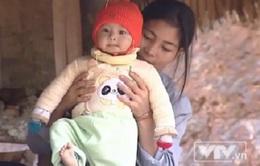 Xót thương bé 8 tháng tuổi bị bệnh tim bẩm sinh