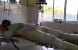 Xin cứu giúp chị Nga bị bỏng nặng do nổ gas