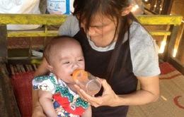 Chương trình TTCE trợ giúp bé Thái Bá Quân phẫu thuật tim