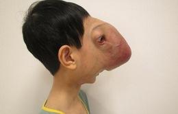 Phẫu thuật thành công ca u máu khổng lồ trên mặt