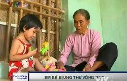 Xót thương bé 3 tuổi bị ung thư võng mạc