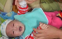 Tiếng khóc lặng của bé 5 tháng tuổi bị hở vòm và dị tật bộ phận sinh dục