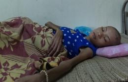 Mắc bệnh lạ, cô gái giảm gần 40kg trong vòng ít tháng