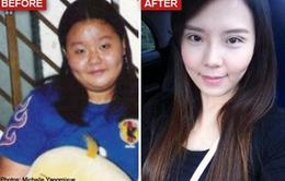 Từ béo phì thành hot girl sau giảm cân