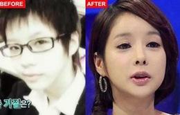 Phẫu thuật 120 lần để có gương mặt hoàn hảo