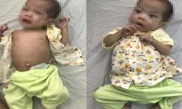 Teo ruột non bẩm sinh, bé 7 tháng tuổi suy dinh dưỡng nặng